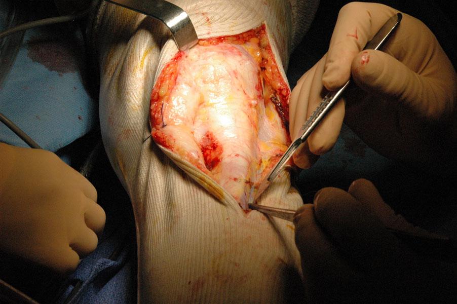 Instabilité rotulienne : Intervention sur le genou - Ortho7