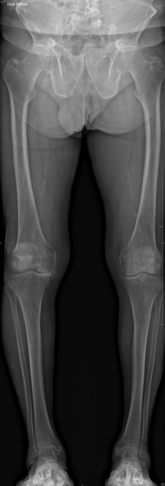 Ostéotomie tibiale de valgisation dr Lozach