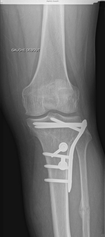 Ostéotomie tibiale de valgisation chirurgien orthopédique