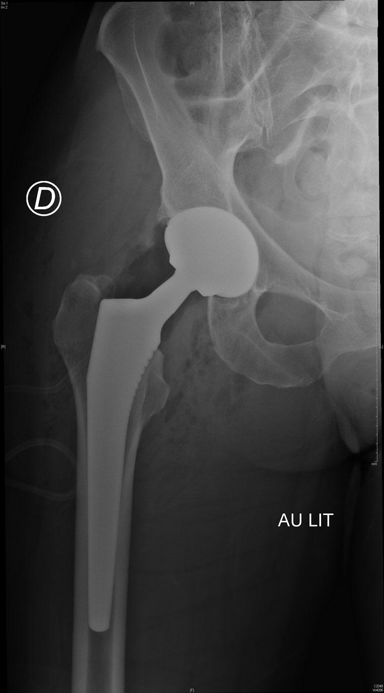 Prothèse totale hanche
