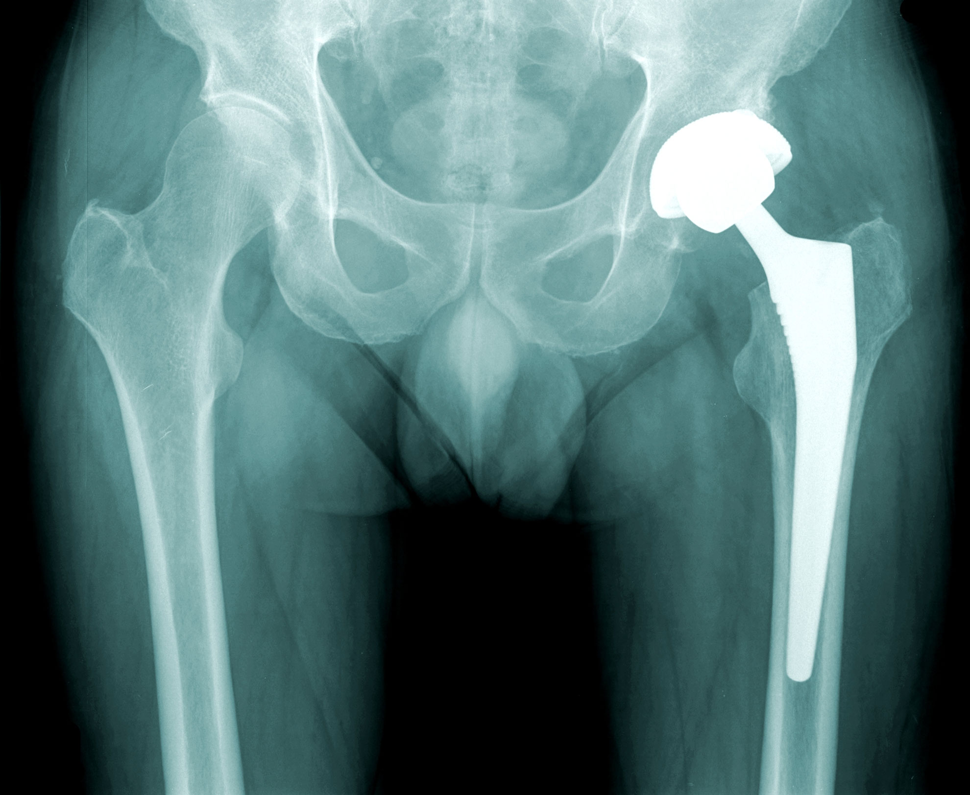 PTH, prothèse totale de hanche, orthopédie, chirurgie orthopédique, ortho-7